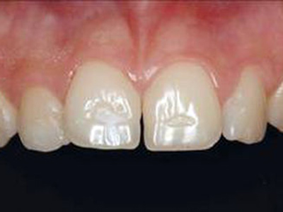 Picture showing central Incisors with enamal defects