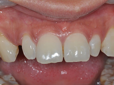 This upper right peg shape lateral incisor can be restored simply with composite veneers or porcelain veneers.