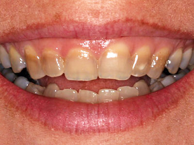 This patient has discoloured teeth because of tetracycline staining