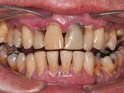 Picture of patient with severe gum disease