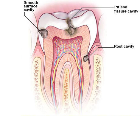 Diagram showing progression of  tooth decay