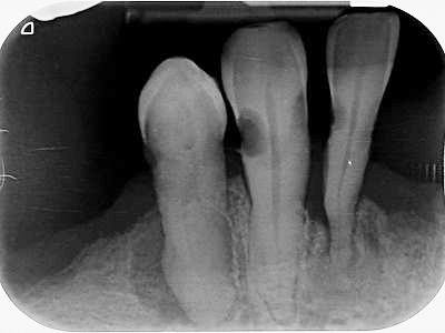 Periapical x-ray showing root caries